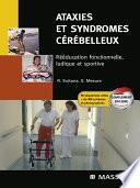 Ataxies et syndromes cérébelleux