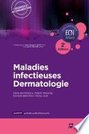 Maladies infectieuses - Dermatologie